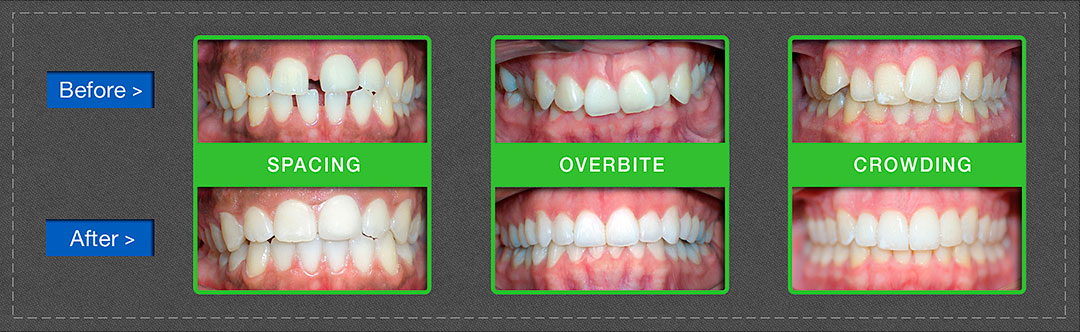 Clear Correct Teeth Before After